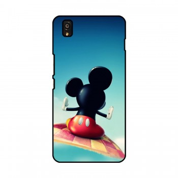 Mickey Printed OnePlus Mobile Case